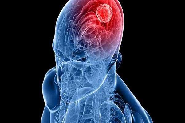 درمان سرطان مغز با مرگبارترین ویروسهای جهان